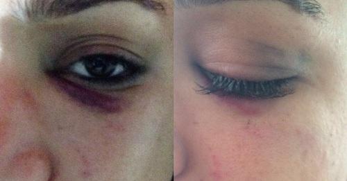 Myriam Ruth, 22 anos, mostra hematomas após denunciar agressão sofrida por homem dentro de bar em área nobre de Belém. (Foto: Reprodução)