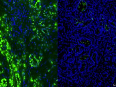 À esquerda, células de câncer no pâncreas aparecem em verde. Após o tratamento de seis dias (dir.), elas desapareceram Foto: Douglas Fearon / Universidade de Cambridge / Divulgação
